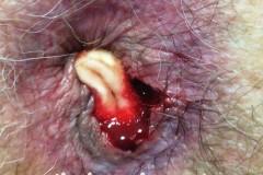 Τελικό αποτέλεσμα μετά αιμορροϊδοπηξία με HAL στον ασθενή της Εικόνας 32