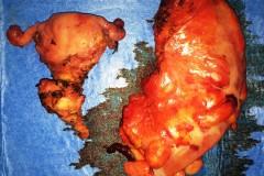 Σιγμοειδεκτομή και υστερεκτομή για Τ4 καρκίνο σιγμοειδούς.