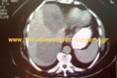 Μεταστατική νόσος ήπατος από καρκίνο παχέος εντέρου (αξονική τομογραφία).