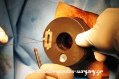 Απολίνωση αιμορροϊδικών αγγείων με HAL