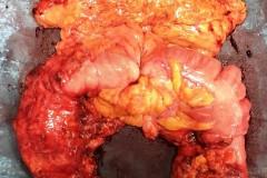 Υφολική κολεκτομή για μετάχρονο καρκίνο εγκαρσίου