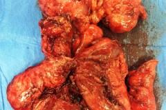Εντεροδερματικό συρίγγιο αναπτυχθέν σε έδαφος προηγούμενης σκωληκοειδεκτομής. Λαπαροσκοπική άποψη του συριγγίου. Χειρουργικό παρασκεύασμα λαπαροσκοπικής ειλεοκολεκτομής.