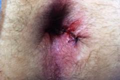 Τελικό αποτέλεσμα μετά αιμορροϊδοπηξία με HAL και πλάγια έσω σφιγκτηροτομή στον ασθενή της Εικόνας 36