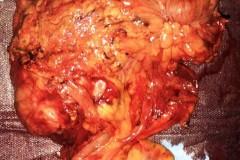 Δεξιά κολεκτομή για καρκίνο ανιόντος κόλου
