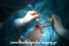 Αιμορροϊδοπηξία υπό άμεση όραση στον ασθενή της Εικόνας 18