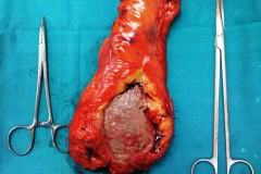 Χαμηλή πρόσθια εκτομή για καρκίνο ορθού (διανοιγμένο παρασκεύασμα).