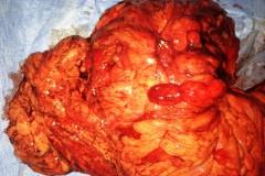 Φλεγμονώδης προσβολή με στοιχεία απόφραξης. Λαπαροσκοπική ειλεοκολεκτομή και μετεγχειρητική εικόνα της κοιλιάς της ασθενούς.