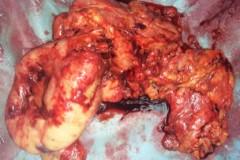 Βαρειά προσβολή με διάτρηση τελικού ειλεού. Επείγουσα χειρουργική αντιμετώπιση με ειλεοκολεκτομή, τελική ειλεοστομία και βλεννογονικό συρίγγιο παχέος εντέρου.